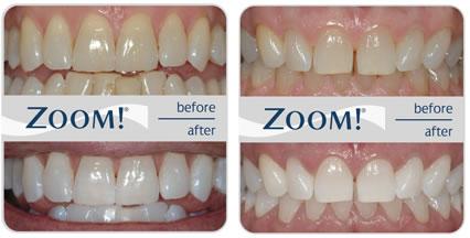 zoom-teeth2