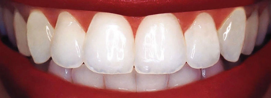 Dental Bonding Perfect Smile