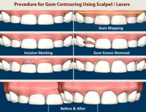 gum_recountouring_procedure