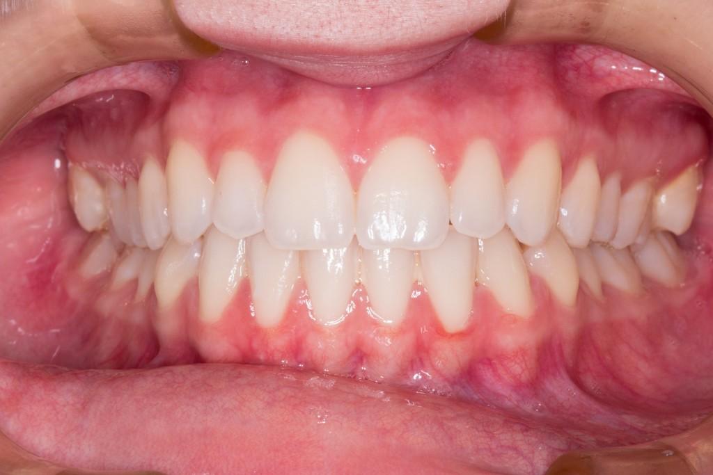teeth-2339168_1920